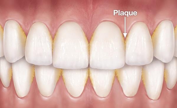 Có mấy loại cao răng? Làm sao để loại bỏ cao răng hoàn toàn? 2