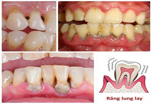 Tìm hiểu chi tiết cao răng là gì và những tác hại của nó 2