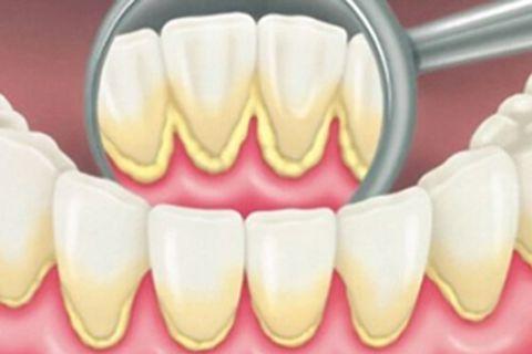 Nguyên nhân hình thành mảng bám vôi răng & nguy hại khó lường 5
