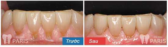 Tìm hiểu chi tiết từ A - Z về hiện tượng bị tụt lợi chân răng 5