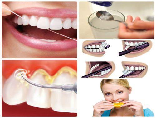 Tìm hiểu từ A - Z về tình trạng chảy máu chân răng 5