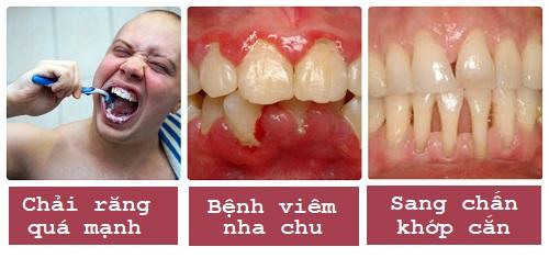 Hiện tượng bị tụt lợi chân răng - Nguyên nhân và cách điều trị triệt để 2