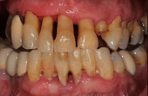Hiện tượng bị tụt lợi chân răng - Nguyên nhân và cách điều trị triệt để 3
