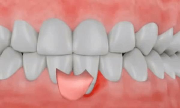 Hiện tượng bị tụt lợi chân răng - Nguyên nhân và cách điều trị triệt để 6