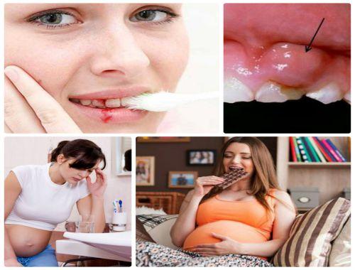 Bà bầu bị chảy máu chân răng nguy hiểm ra sao? 1