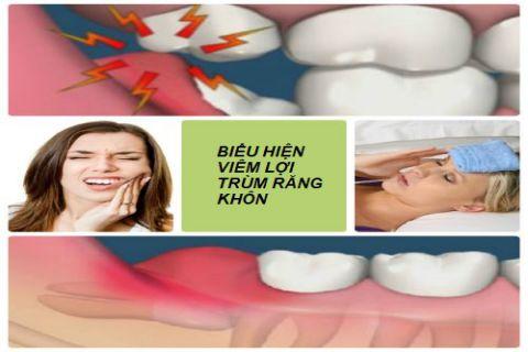 Viêm lợi trùm răng khôn - Khái niệm dấu hiệu & cách điều trị DỨT ĐIỂM 3