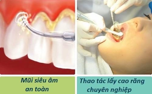 4 tác dụng của việc lấy cao răng cực tốt cho sức khỏe răng miệng 3