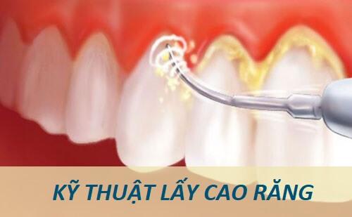 Lấy cao răng có ảnh hưởng đến thai nhi không? Chuyên gia nha khoa tư vấn 2