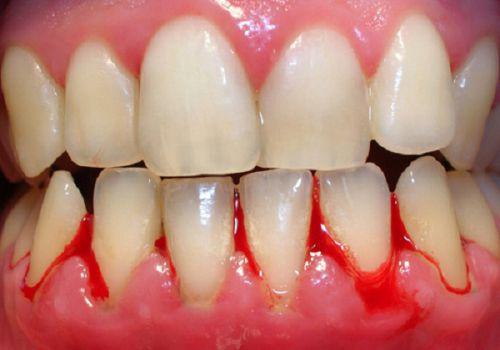 Chảy máu chân răng hôi miệng - Nguyên nhân & cách chữa Dứt Điểm 2