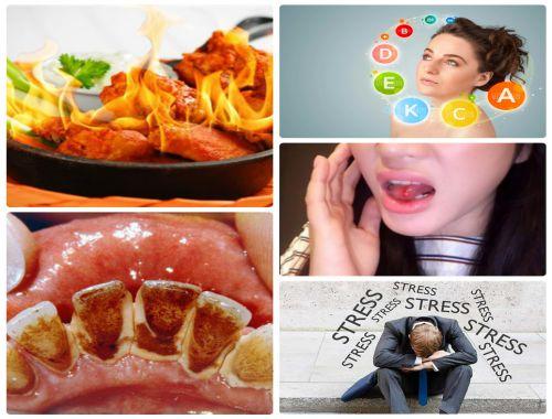 Nhiễm trùng miệng – nguyên nhân và cách điều trị triệt để 2