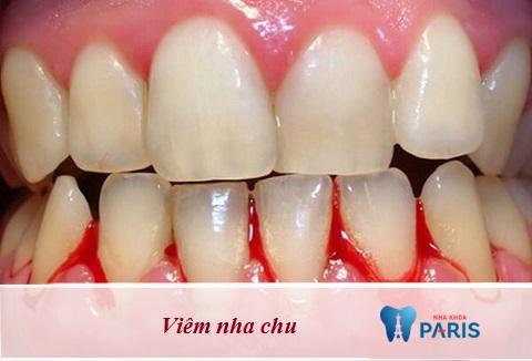 Tự nhiên bị chảy máu chân răngcó thể là biểu hiện của bệnh viêm nha chu