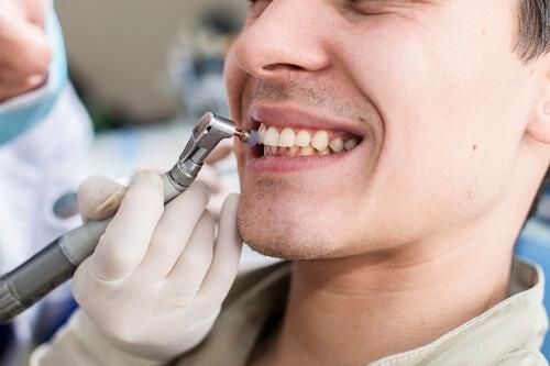 Bật mí: Lấy cao răng có ảnh hưởng gì không & NGUY HẠI như thế nào? 1