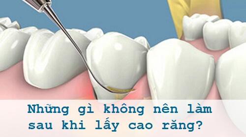 Những gì không nên làm sau khi lấy cao răng ai cũng cần phải biết 1
