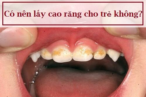 Chuyên gia giải đáp: Có nên lấy cao răng cho trẻ không? 1