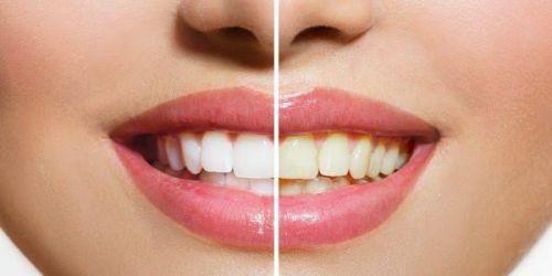 """Lấy cao răng có làm trắng răng không? """"Chuyên Gia Tư Vấn"""" 3"""