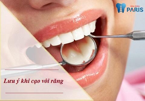 Lưu ý sau khi cạo vôi răng để hàm răng đẹp - sạch khuẩn
