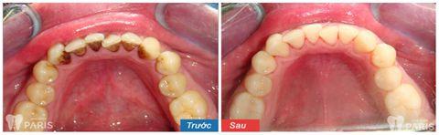 """Tại sao lại có mảng bám đen chân răng & cách trị """"Dứt Điểm 100%"""" 1"""