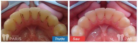 """Tại sao lại có mảng bám đen chân răng & cách trị """"Dứt Điểm 100%"""" 2"""