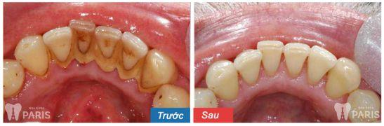 Cách xử lý hiệu quả bệnh viêm nha chu nặng an toàn Hiệu Quả 3