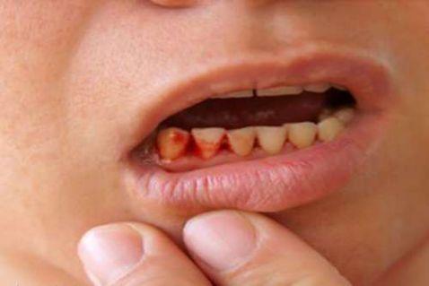 Chảy máu chân răng phải làm sao? Nguyên nhân là gì? 2