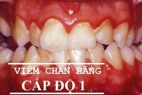Viêm chân răng có mủ - Nguyên nhân và cách điều trị theo từng cấp độ 6