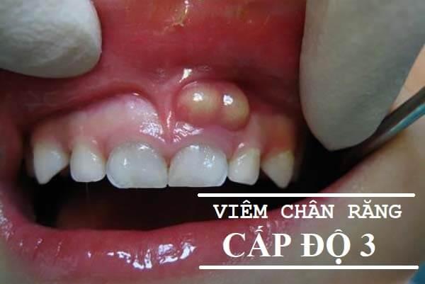 Viêm chân răng có mủ - Nguyên nhân và cách điều trị theo từng cấp độ 2