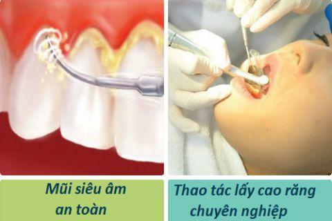 Bà bầu có nên lấy cao răng không? Làm sao để đảm bảo An Toàn nhất? 1