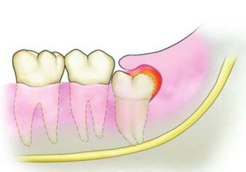 Viêm lợi trùm răng khôn - Khái niệm dấu hiệu & cách điều trị DỨT ĐIỂM 5