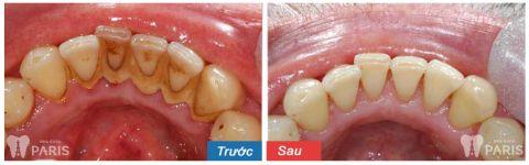 Quy trình lấy cao răng bằng máy siêu âm An Toàn - Không Ê Buốt 5