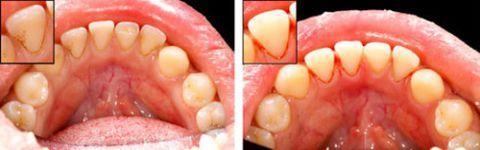 Quy trình lấy cao răng bằng máy siêu âm An Toàn - Không Ê Buốt 4