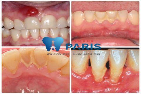 Quy trình lấy cao răng bằng máy siêu âm An Toàn - Không Ê Buốt 8