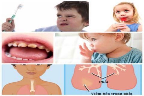 Nguyên nhân, nguy hại & cách khắc phục trẻ bị hôi miệng ngay tức thì 7