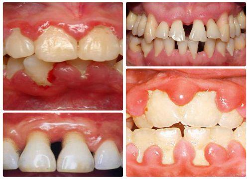 7 cách chữa chảy máu chân răng TRIỆT ĐỂ & Những lưu ý cần biết! 3