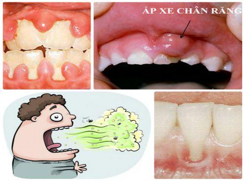 Sưng mộng răng - Nguyên nhân & Cách chữa trị theo từng giai đoạn 4