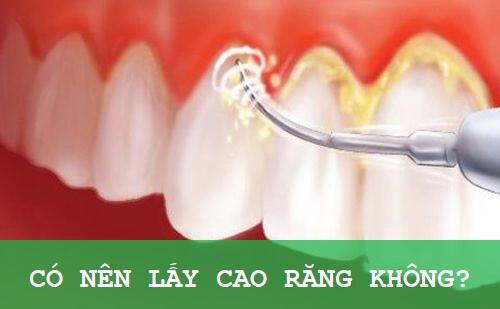 Có nên lấy cao răng và những LƯU Ý QUAN TRỌNG không thể bỏ qua 1