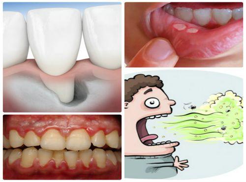Có nên lấy cao răng và những LƯU Ý QUAN TRỌNG không thể bỏ qua 2