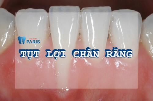 Hiện tượng bị tụt lợi chân răng - Nguyên nhân và cách điều trị triệt để 1