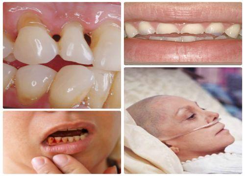 Cách làm sạch răng bằng tăm tre và nguy cơ HỎNG RĂNG HẠI NƯỚU 2