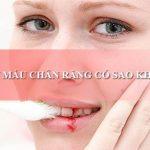 Giải đáp thắc mắc: Chảy máu chân răng có sao không?