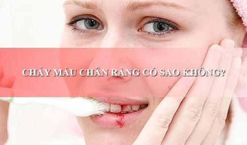 Chảy máu chân răng có sao không và cách điều trị hiệu quả 100% 2