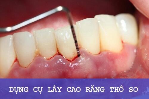 Lấy cao răng bị chảy máu có nguy hiểm không? Nguyên nhân do đâu? 3