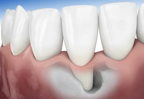 Lấy cao răng bị chảy máu có nguy hiểm không? Nguyên nhân do đâu? 4