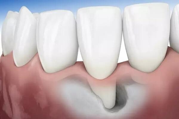 Nhiễm trùng nướu răng - Nguyên nhân & cách chữa dứt điểm 2