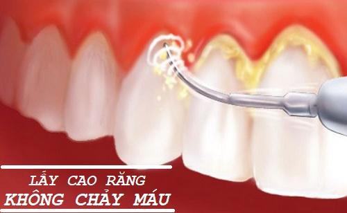Lấy cao răng không chảy máu với công nghệ hiện đại 1