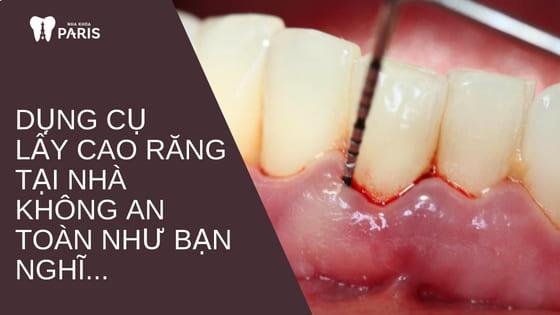 Dụng cụ lấy cao răng tại nhà liệu có An Toàn Hiệu Quả như bạn nghĩ? 3