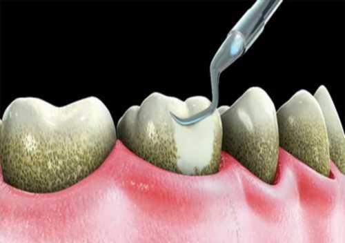 Bé bị sưng nướu răng - Nguyên nhân và cách điều trị TRONG 3 NGÀY 2