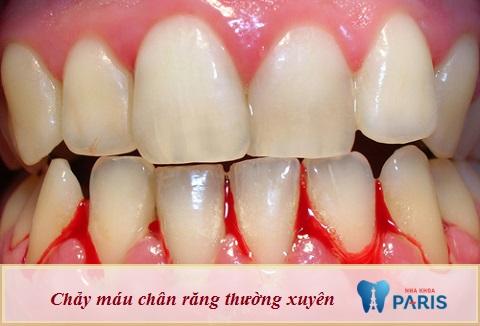 Có rất nhiều nguyên nhân dẫn đến tình trạng chảy máu chân răng thường xuyên