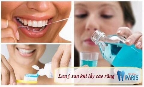 Lưu ý sau khi lấy cao răng