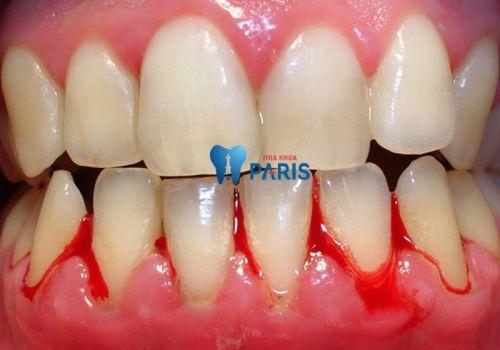 """Mảng bám trên răng là gì & """"TOP 3 SIÊU LỢI ÍCH"""" khi cạo vôi răng 2"""