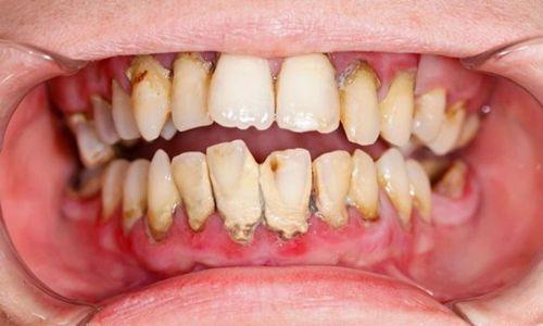 """""""NGUY HẠI KHÔN LƯỜNG"""" từ mảng bám răng & cách trị nhanh chóng 12"""